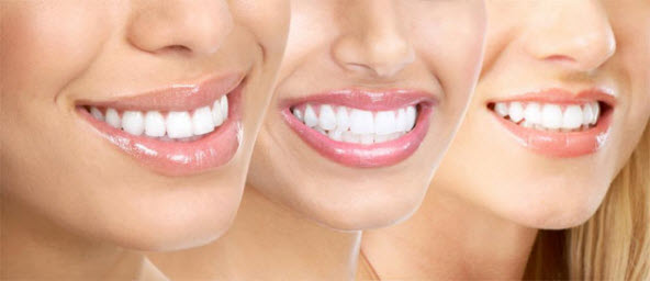 Dental Implants Bellmore