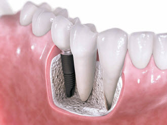 Dental Implants Massapequa Park