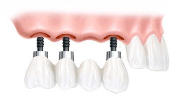 Dentist Bellmore