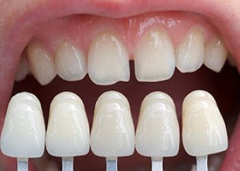 Dentist Seaford