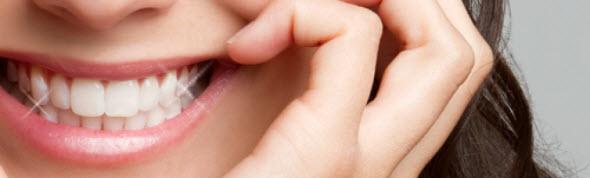 Teeth Whitening Bellmore