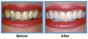cosmetic-dentistry-bellmore-digital-imaging